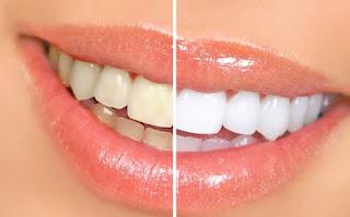 Foto Gigi Putih Cara Mudah Putihkan Gigi Kuning dengan Bahan Alami Tanpa Efek Samping