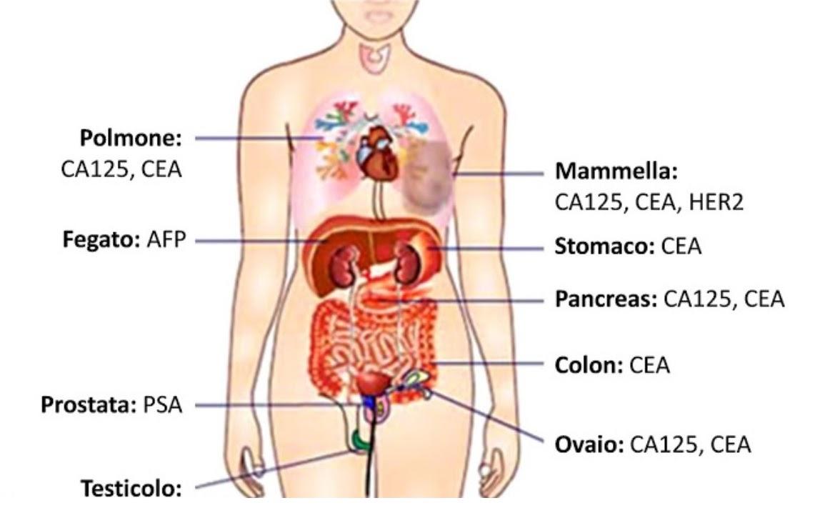 marcatori tumorali prostata valorita