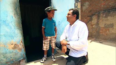 Imagens de Fabrício antes do tratamento médico (Divulgação/Record TV)