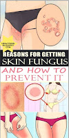 REASONS FOR GETTING SKIN FUNGUS AND HOW TO PREVENT IT #beauty #beautytips #beautyhacks #beautyDIY #DIY #homemade #skin #skincare #skincaretips #skincarehacks #darkspots #facecare #face #mask #haircare