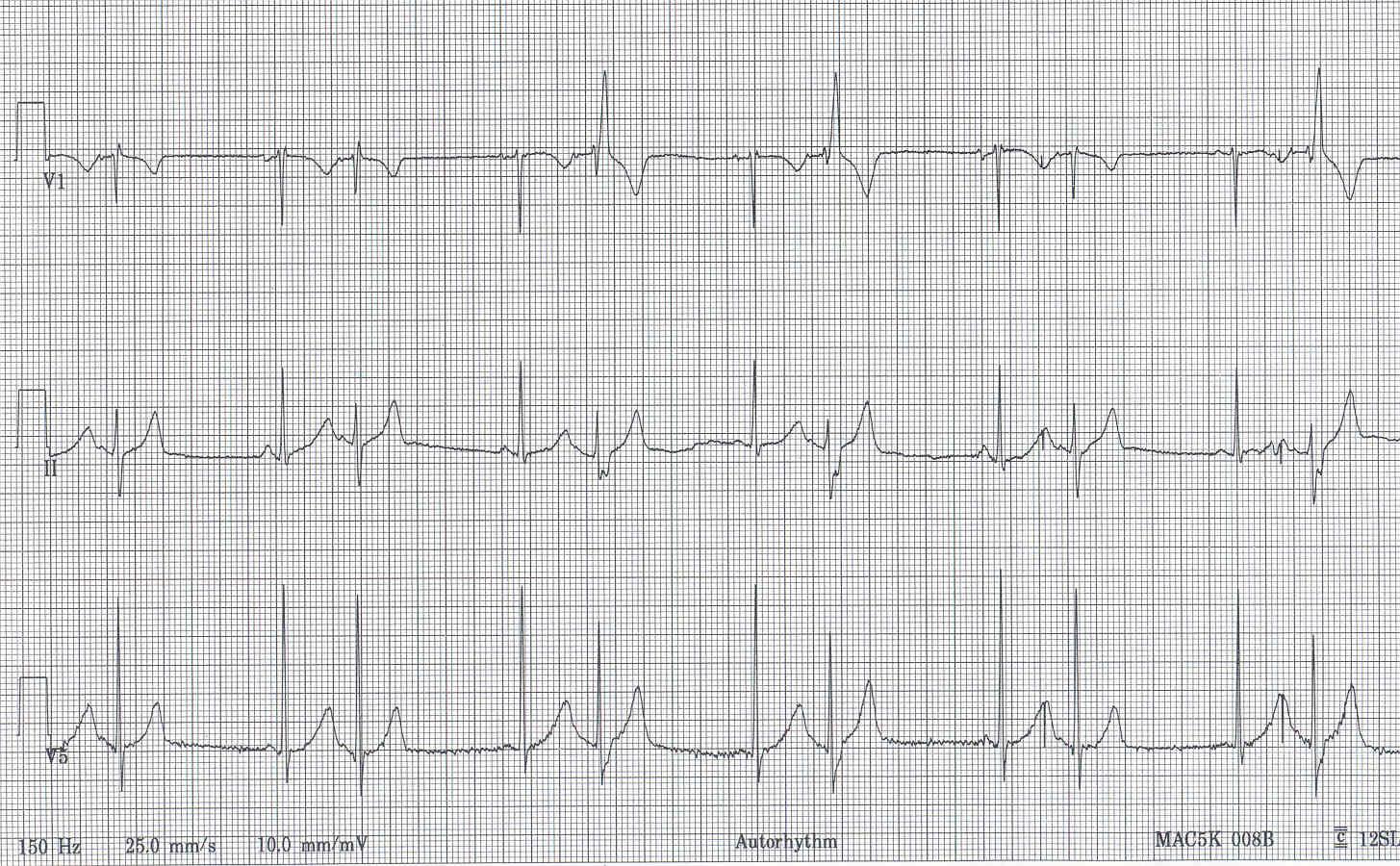 Pedi Cardiology Interpret This Ekg