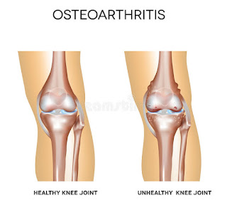Anatomical view of Osteoarthritis