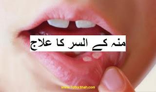 Muh Ke Chalo Ka Totka in Urdu - منہ کے السر کا علاج