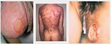 cara menyembuhkan gejala sipilis