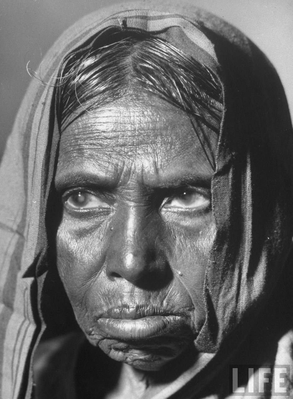 Starving Indian woman who has aged significantly as a result of famine over the last 2 years, due to a drought