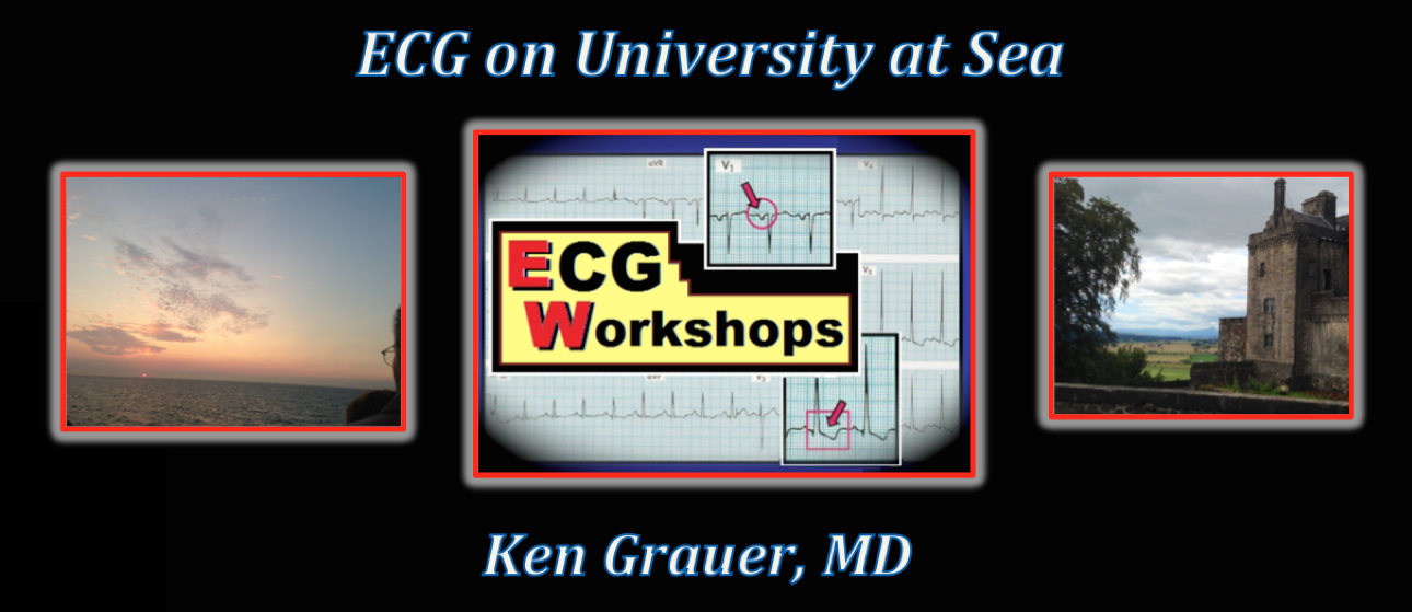 ECG on University at Sea