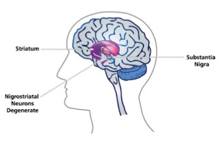 8 Major Causes Of Parkinson's Disease You Should Note Today