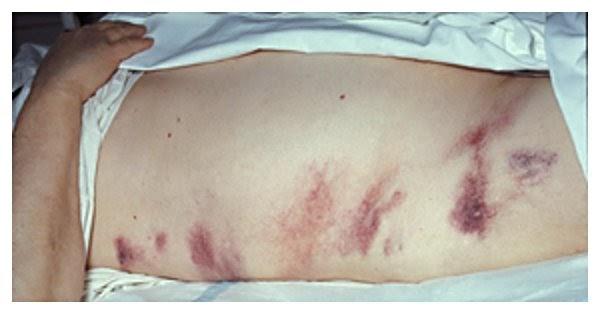Hernia Surgery Bruising