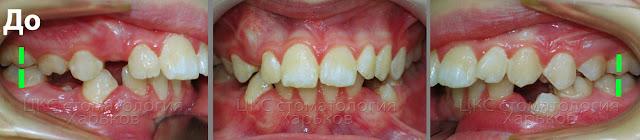 3 фото прикуса пациента в боковых проекциях до начала ортодонтического лечения