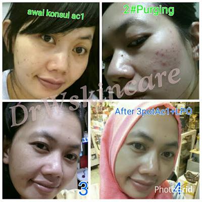 Paket acne drw skincare