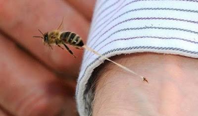 Cara Mengobati Alergi Gigitan dan Sengatan Serangga