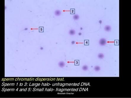 HALO Test, Uji Fregmentasi DNA Sperma