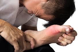Obat Encok Asam Urat Secara alami Tanpa Efek Samping