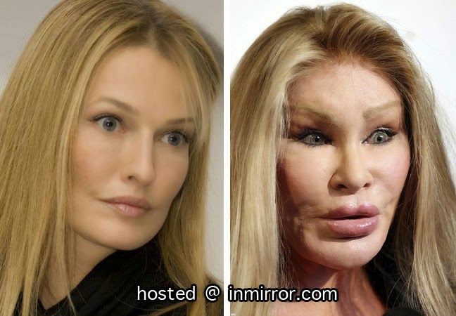 Sixth image of Cat Woman Plastic Surgery Gone Wrong with September 2014