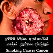 Sri Lanka Implement Graphic Cigarette Warnings