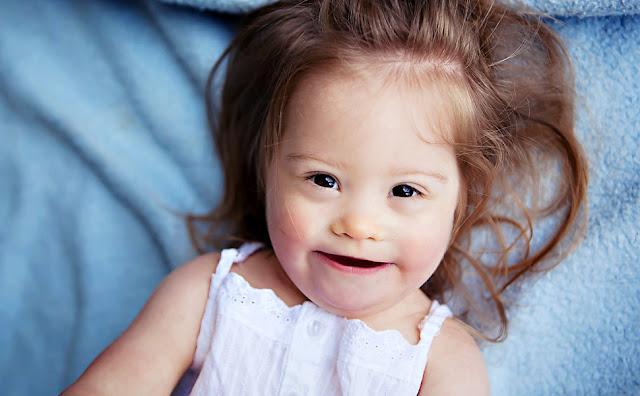 Jolina, 2 Jahre, Down Syndrom