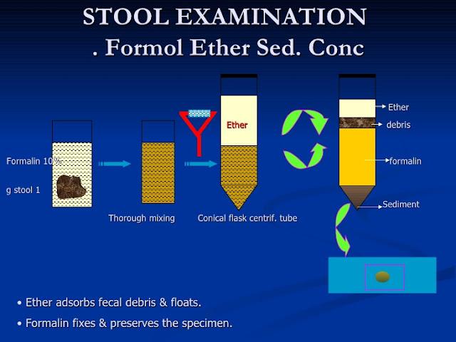 Formol ether concentration technique pdf viewer
