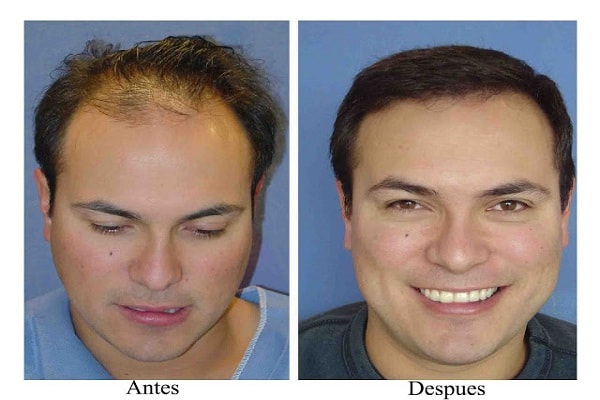 Hair Transplantation in The Decision Making Process