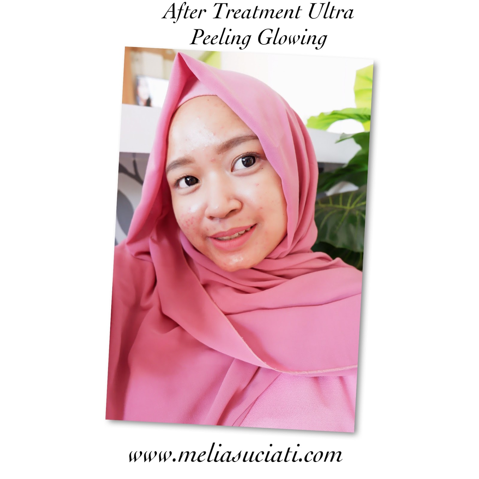 REVIEW DNI TREATMENT ULTRA PEELING GLOWING CABANG KUTA