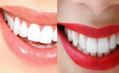 Bahan Alami Untuk Memutihkan Gigi Dengan Cepat
