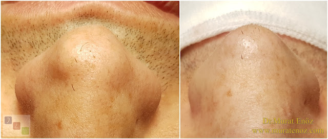 Nose Tip Surgery For Men - Male Nose Tip Plasty Operation in Istanbul - Men's Nose Tip Plasty - Nose Tip Reshaping For Men - Mens Nose Tip Plasty in Turkey - Nose Tip Plasty For Men - Nose Tip Plasty For Men Istanbul - Nose Tip Aesthetic for Men - Male Nose Tip Plasty Operation - Male Nose Tip Plasty Surgery in Istanbul - Male Nose Tip Plasty Surgery in Turkey - Male Nose Tip Aesthetic Surgery - Nose Tip Plasty In Mens Istanbul - Revision Nose Tip Plasty in Men