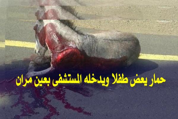 حمار يعض طفلا ويدخله المستشفى بعين مران