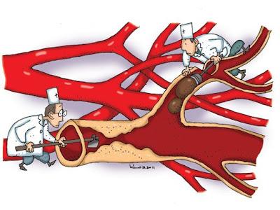 Hoạt huyết, thông mạch là tác dụng nổi bật của bạch quả- ginkgo biloba