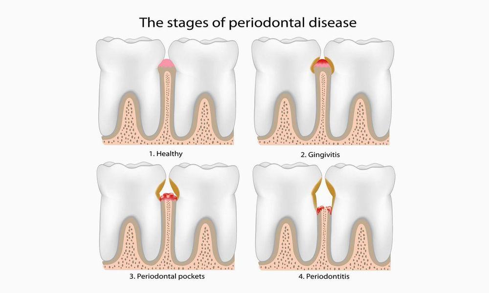 Periodontic