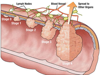 http://www.thegastrosurgeon.com/colorectal-surgery/