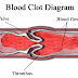 Superb tips for ICD 10 code for Deep Vein Thrombosis