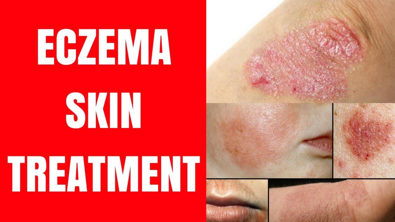 Best skin specialist doctor in deoria 🙋 ♀ +91-8860455545