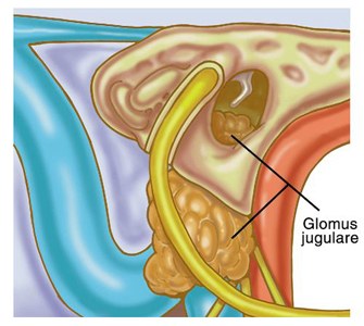 Glomus jugulare tumor