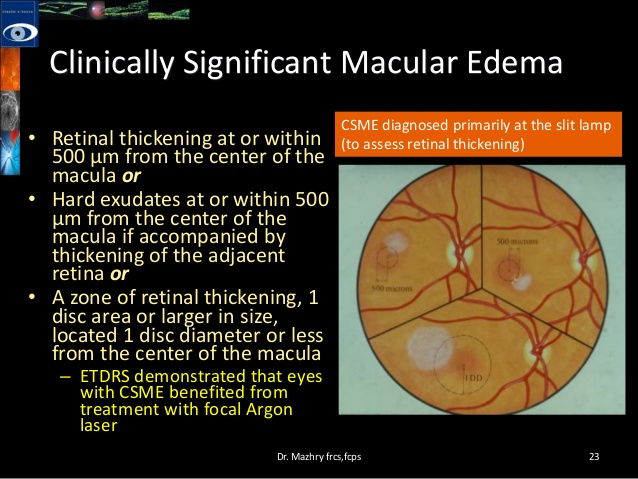 Image Result For Diabetic Macular Edema Treatment