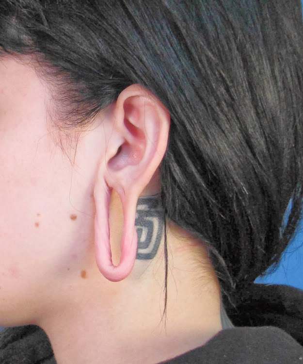 Stretched Ears Gauges | how to heal infected stretched ...