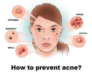 Tips To Help With Acne Avoidance And Treatment