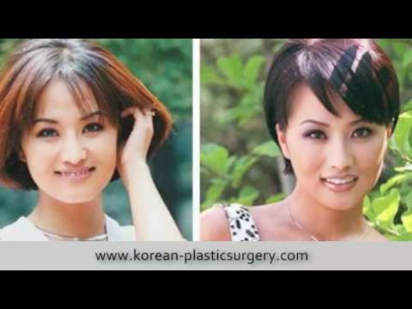 ดาราเกาหลีก่อนศัลยกรรม