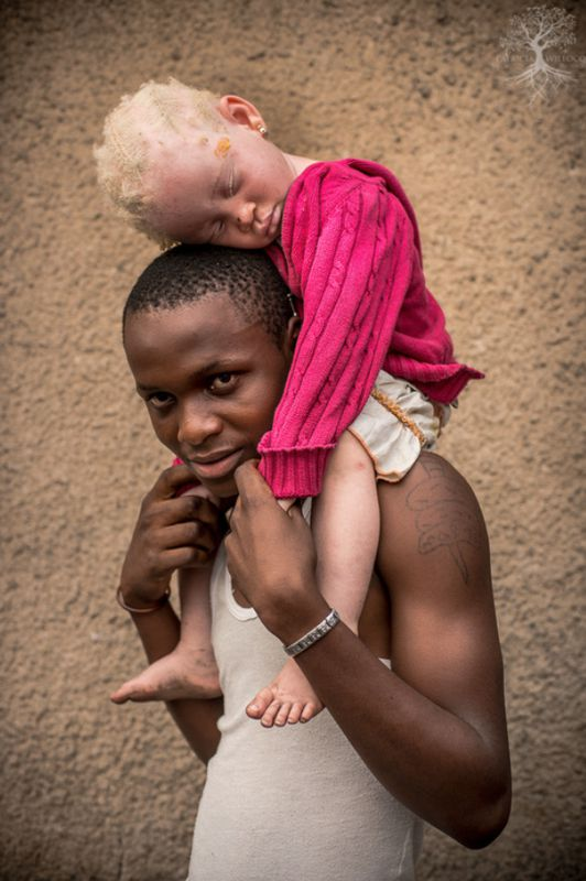 Criança albina