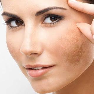 Cara alami mengatasi flek hitam di wajah
