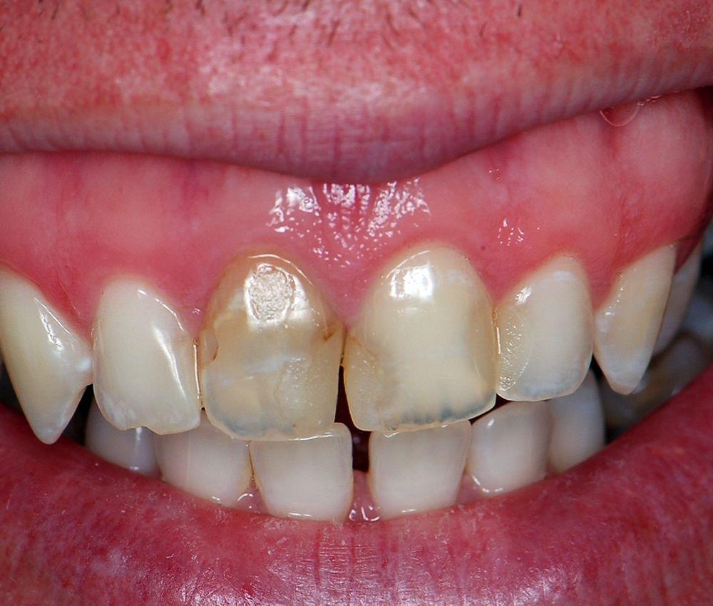 estetica-operatoria-dental
