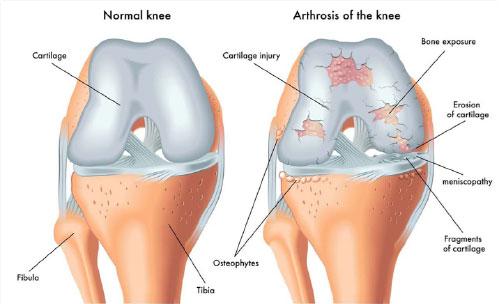 artroza arcadelor și spondilartroza