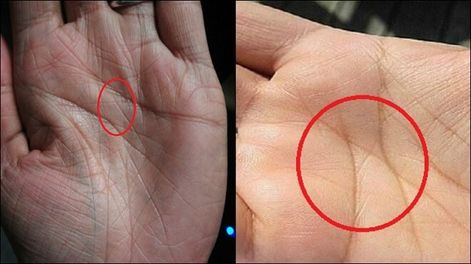 What It Means If You Have The Letter X On Both Your Hands