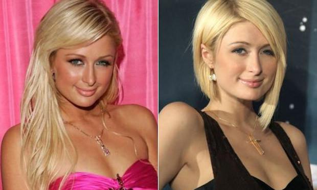 Paris Hilton antes e depois da cirurgia no nariz