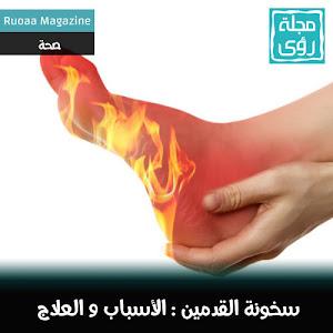 أسباب وعلاج سخونة القدمين