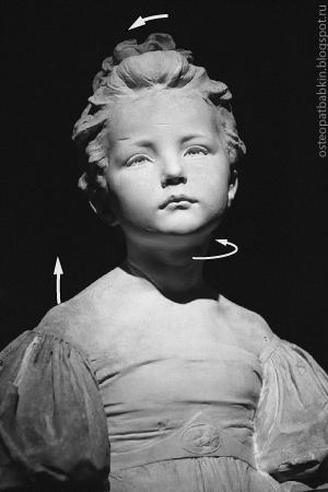 Осанка с дисфункцией правого височно-нижнечелюстного сустава: наклон головы вправо, поворот влево, подъём правого надплечия.