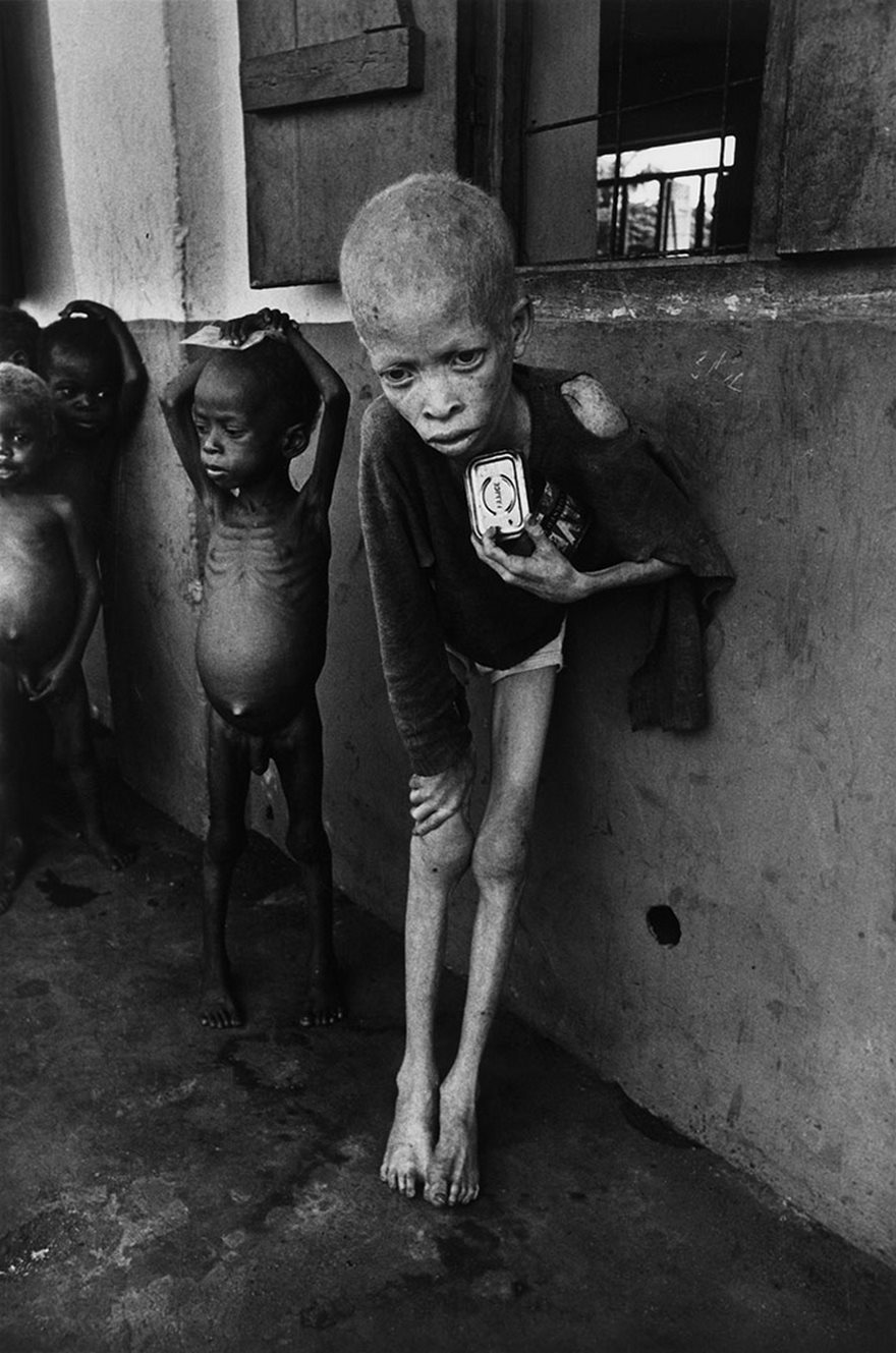 #17 Albino Boy, Biafra, Don Mccullin, 1969 - Top 100 Of The Most Influential Photos Of All Time