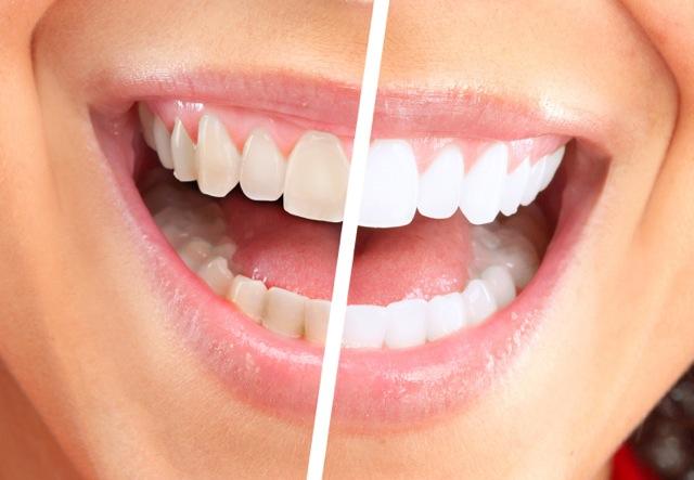 وصفة طبيعية لتبييض الأسنان الصفراء!