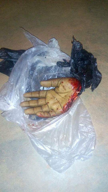 Graphic: Man had his hand chopped off by notorious