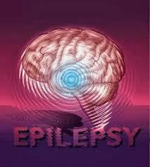 Obat untuk Penderita Epilepsi