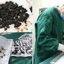 طبيب صيني يستخرج أكثر من 200 حصوة من كبد ومرارة إمرأة!!