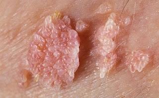 Gambar Foto Penyakit Kelamin Ciri – Ciri Jengger Ayam Kondiloma